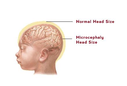 rarest-diseases-microcephaly